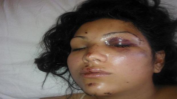 mujeres golpeadas